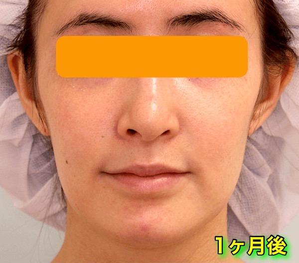 上下顎セットバック+バッカルファットの症例写真|正面・1ヶ月後