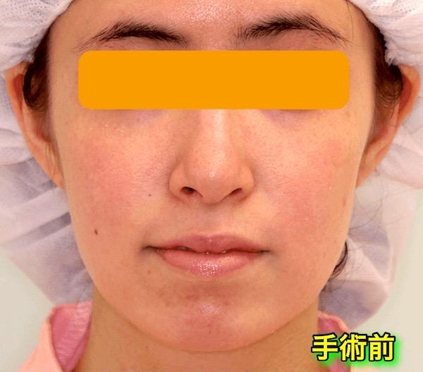 上下顎セットバック+バッカルファットの症例写真|正面・術前