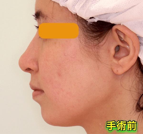 上下顎セットバック+バッカルファットの症例写真|側面・術前