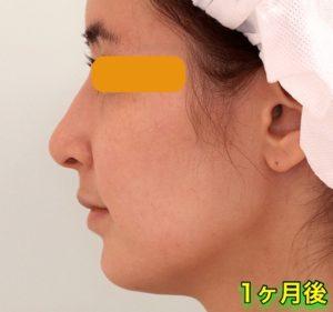 上下顎セットバック+バッカルファットの症例写真|側面・1ヶ月後