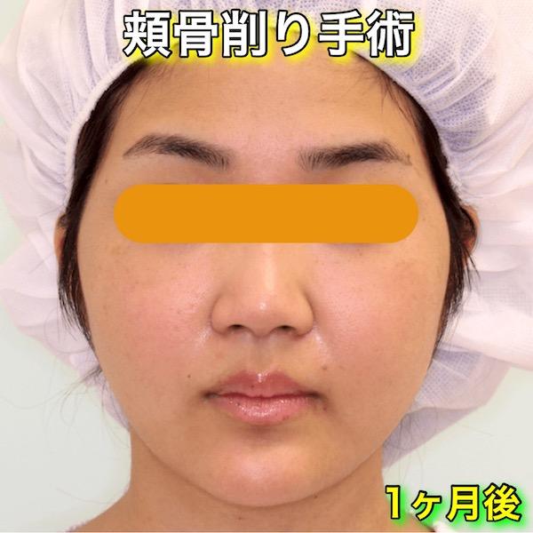 頬骨削り手術の症例写真|手術前(After・1ヶ月後)
