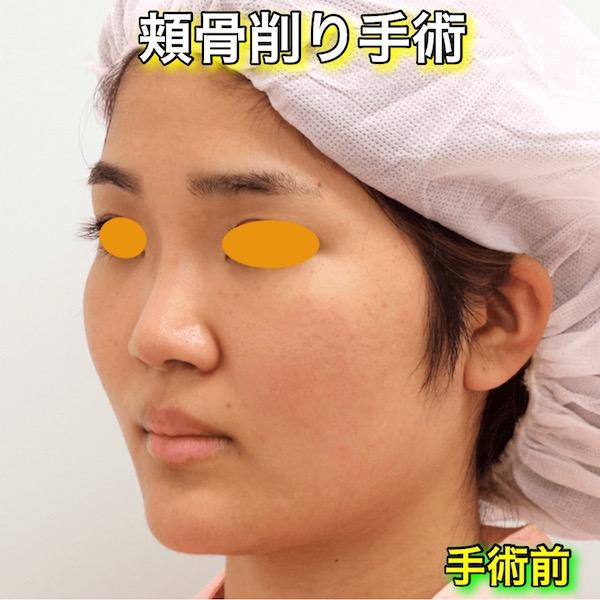 頬骨削り手術の症例写真|手術前(Before)