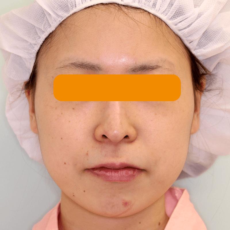 上下顎セットバックの症例写真|Before・正面