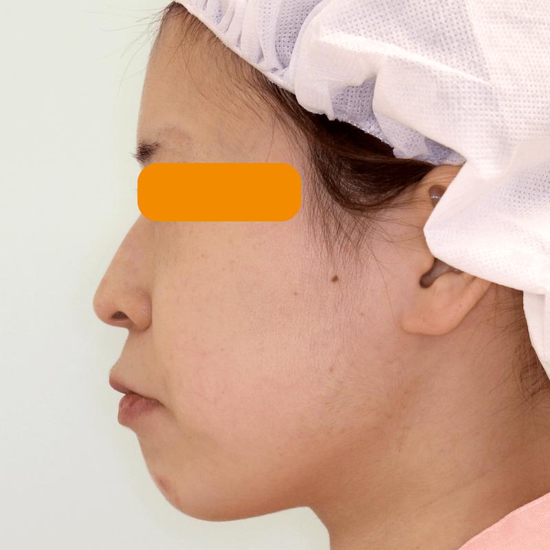 上下顎セットバックの症例写真|Before・側面