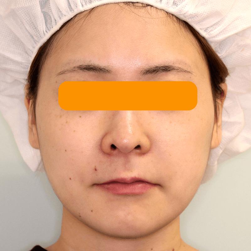 上下顎セットバックの症例写真|After・正面