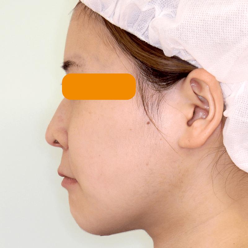 上下顎セットバックの症例写真|After・側面