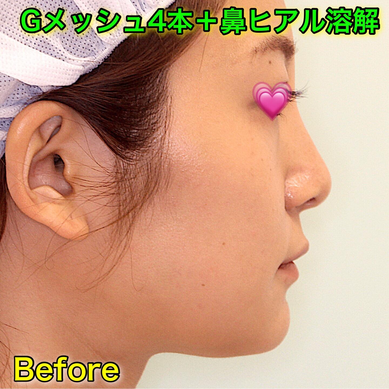 Gメッシュ4本+鼻ヒアル溶解|Before