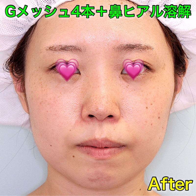 Gメッシュ4本+鼻ヒアル溶解|After