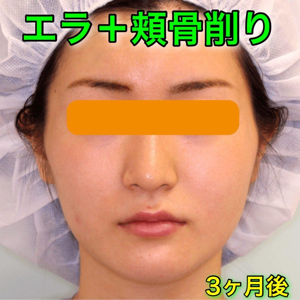 エラ削り+頬骨削り|症例写真(BeforeAfter)|3ヶ月後・正面