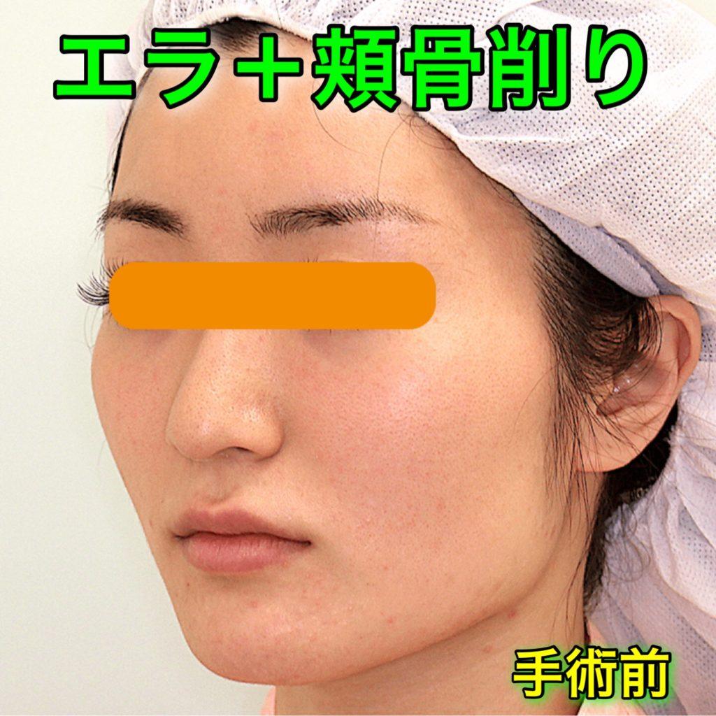 エラ削り+頬骨削り|症例写真(BeforeAfter)|手術前・斜め