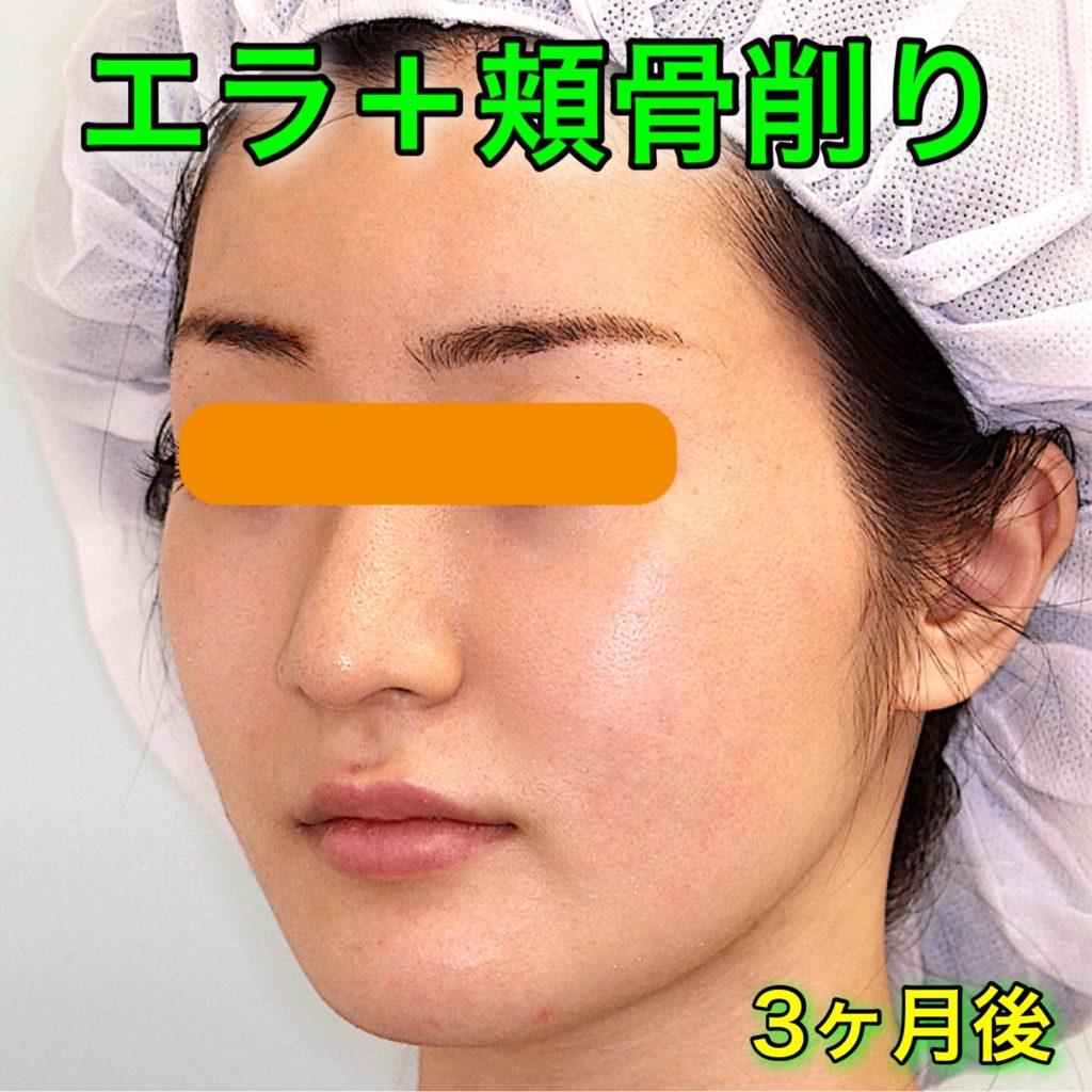 エラ削り+頬骨削り|症例写真(BeforeAfter)|3ヶ月後・斜め