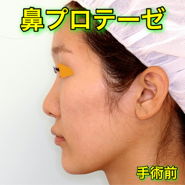 鼻プロテーゼの症例写真|BeforeAfter