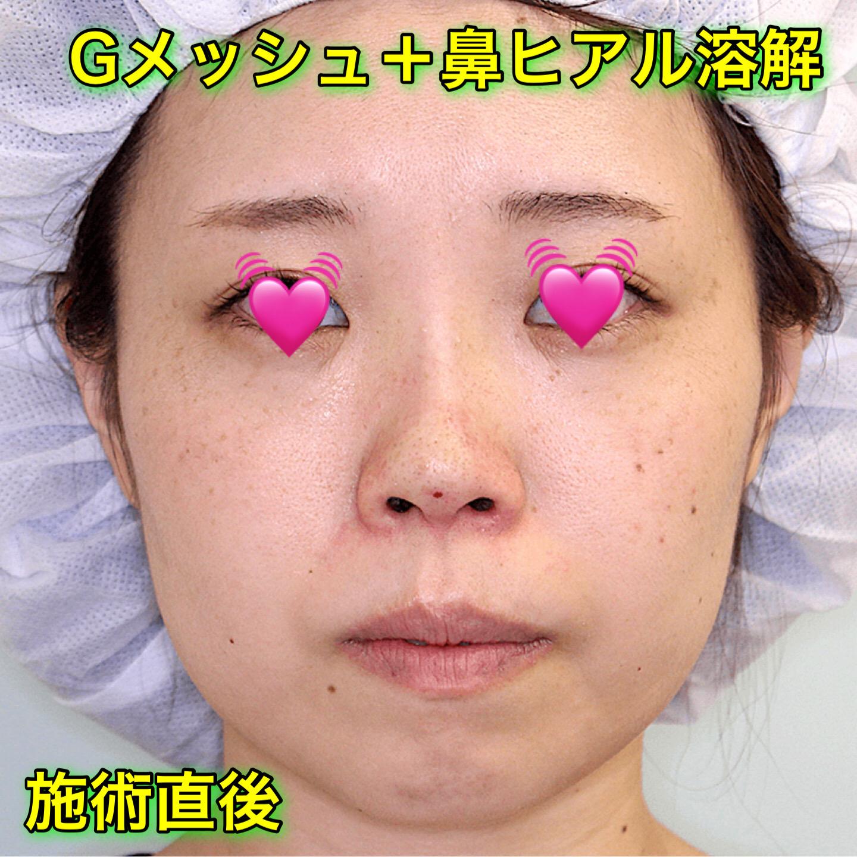 Gメッシュ(鼻)の症例写真 Before After