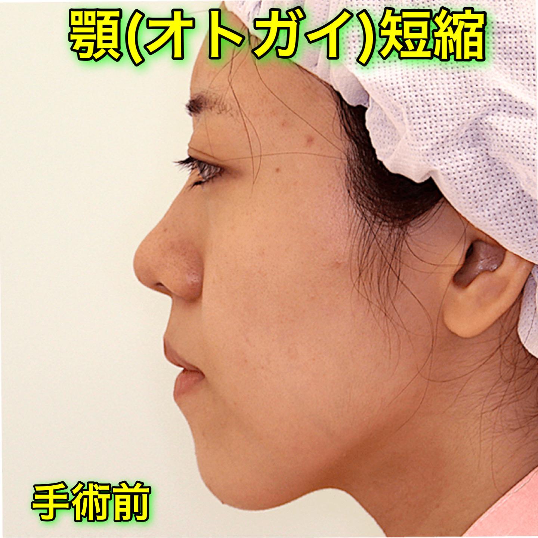 顎削り(オトガイ短縮)|症例写真