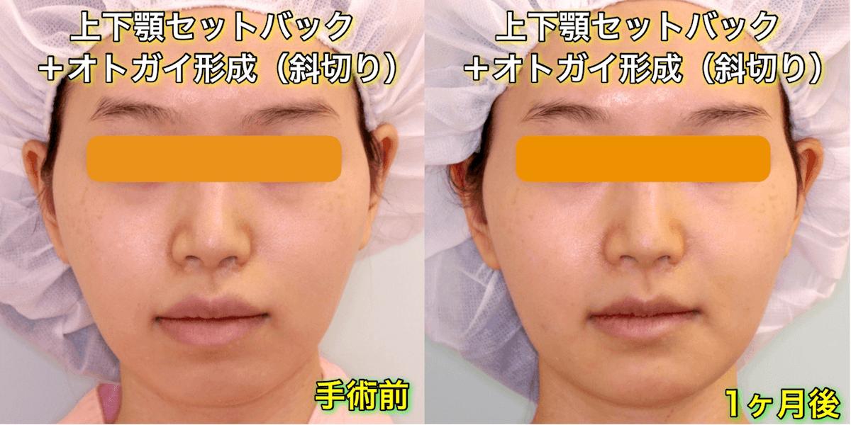 上下顎セットバックの症例写真