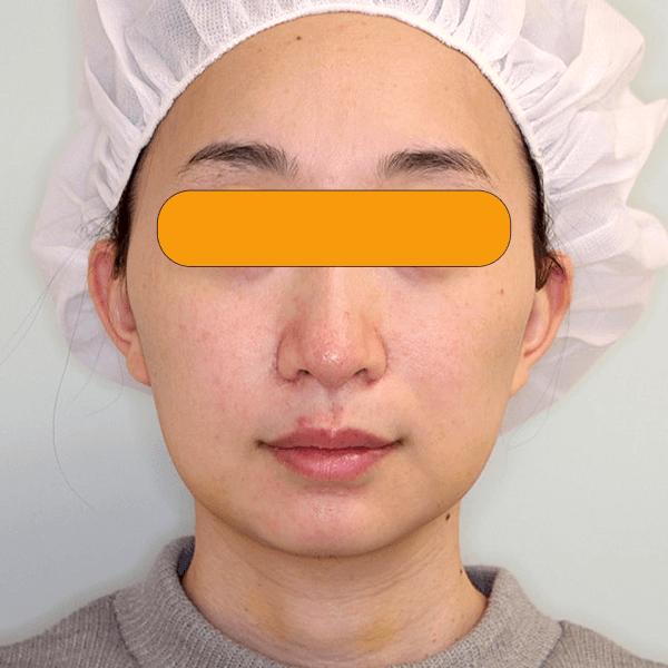 頬と顎下の脂肪吸引|経過写真
