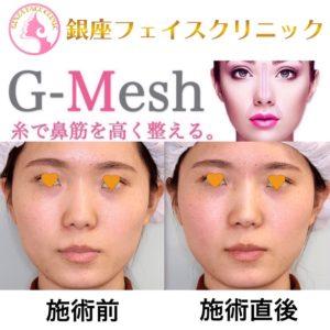 Gメッシュの症例写真