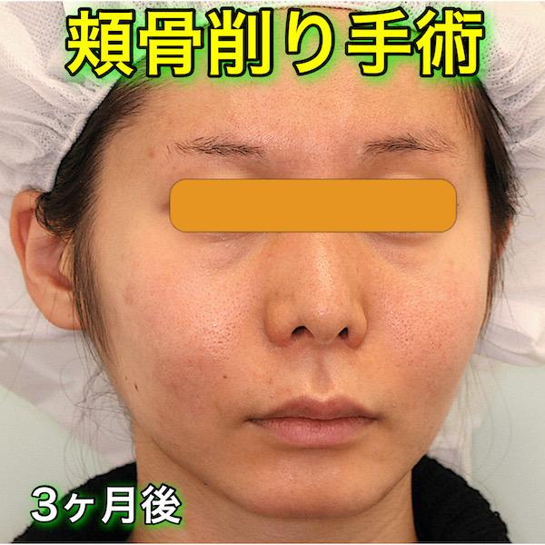 頬骨削り手術の症例写真(BeforeAfter)