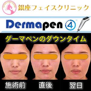 ダーマペン4のダウンタイム