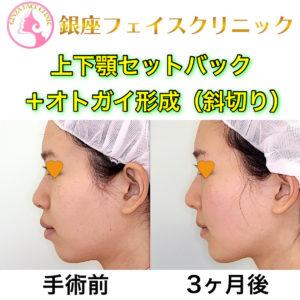 上下顎セットバック+オトガイ形成の症例写真(BeforeAfter)