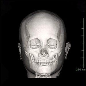 頭蓋顔面骨CT画像