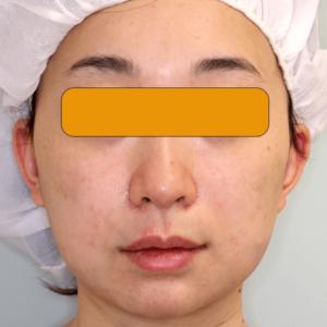 頬の脂肪吸引|直後の腫れ|症例写真