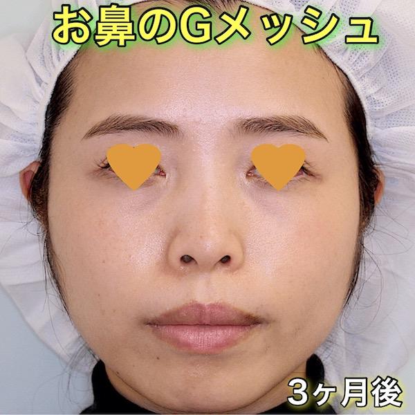 お鼻(鼻筋)のGメッシュの症例写真