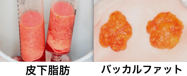 頬と顎下の脂肪吸引・バッカルファット除去・HIFUリフトの症例写真