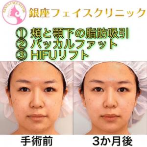 バッカルファット除去|頬と顎下の脂肪吸引|HIFUリフト