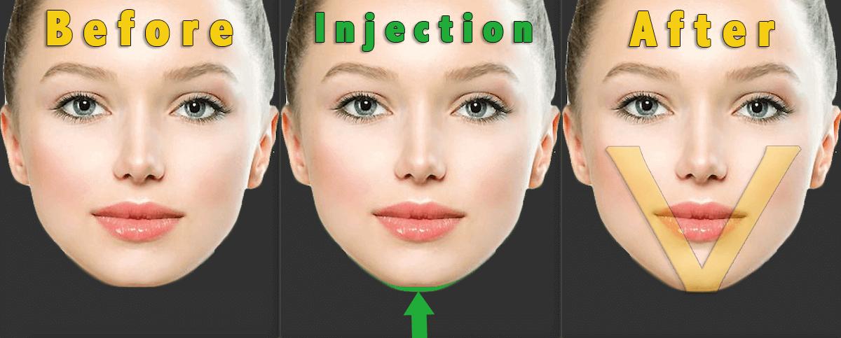顎ヒアルロン酸|Vライン