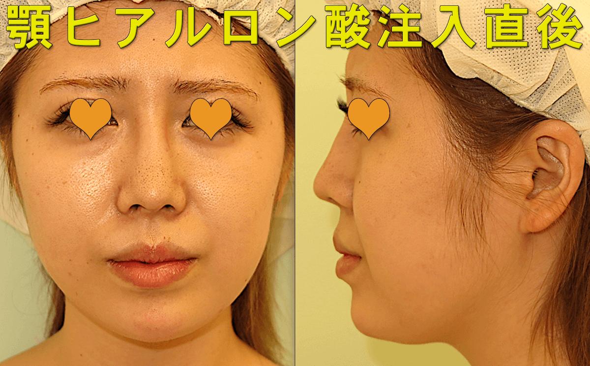 顎ヒアルロン酸の症例写真|施術直後の様子
