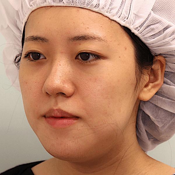 オトガイ削りの症例写真(腫れ)