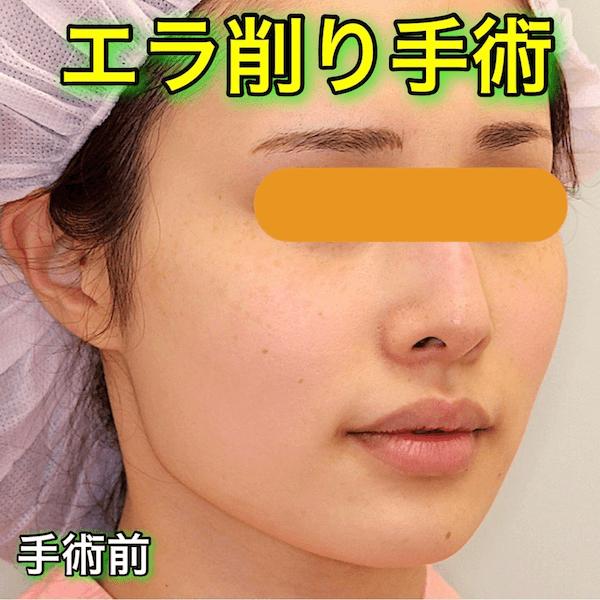 エラ削り手術|症例写真(Before After)
