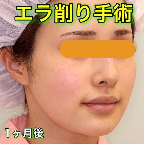 エラ削り手術|症例写真(Before After)エラ削り手術|症例写真(Before After)