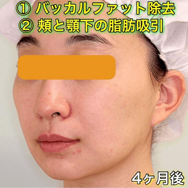 バッカルファット除去|頬と顎下の脂肪吸引