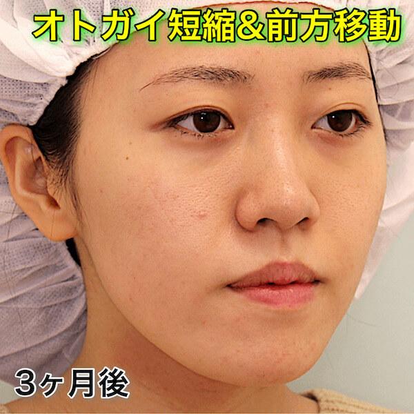 オトガイ削りの症例写真(ビフォーアフター)