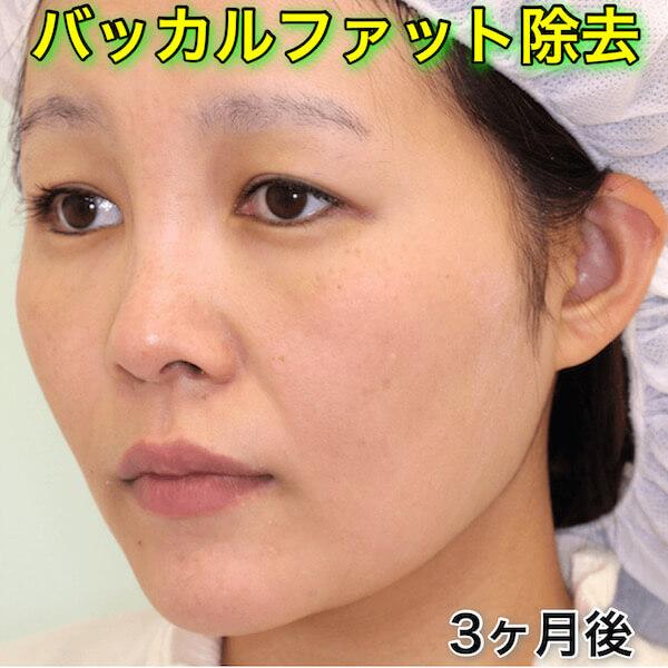 バッカルファット除去の症例写真(ビフォーアフター|BeforeAfter)
