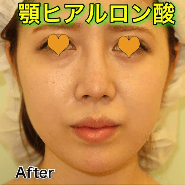 顎ヒアルロン酸の症例写真(ビフォーアフター)