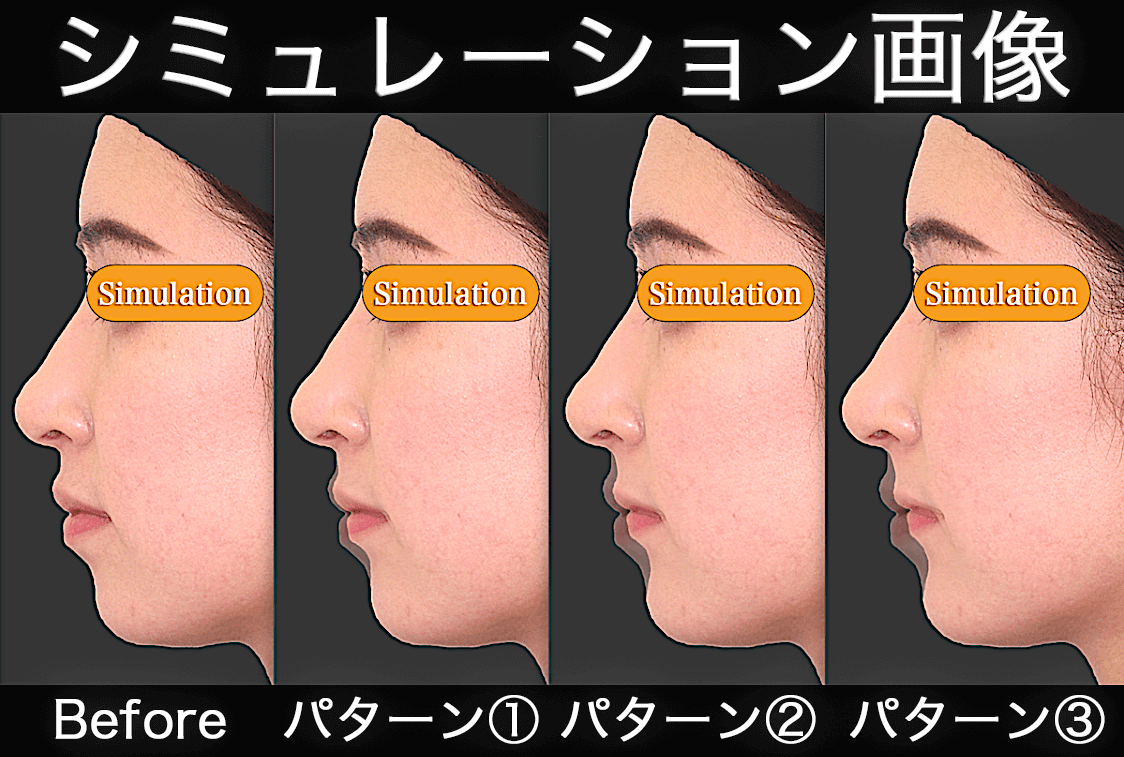 上下顎セットバック|シミュレーション