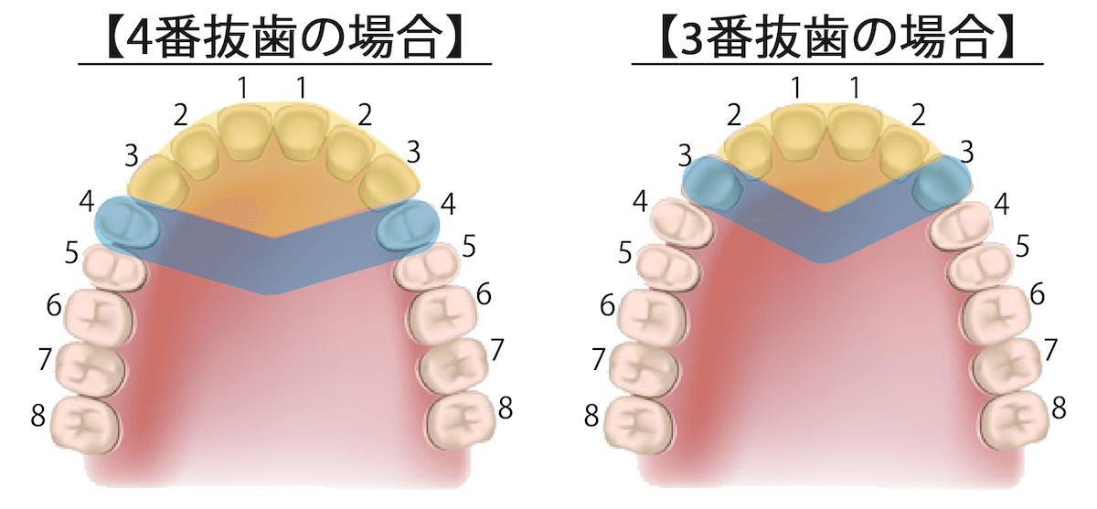 上下顎セットバック|抜歯3番4番