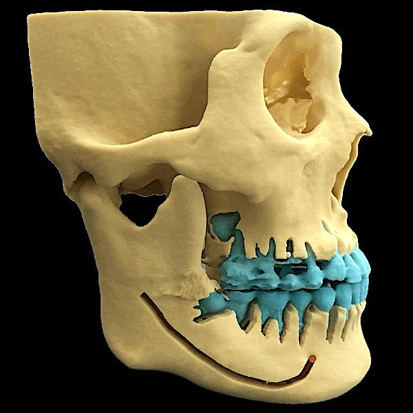 3D骨格模型|骨切り・骨削り手術の術前検査
