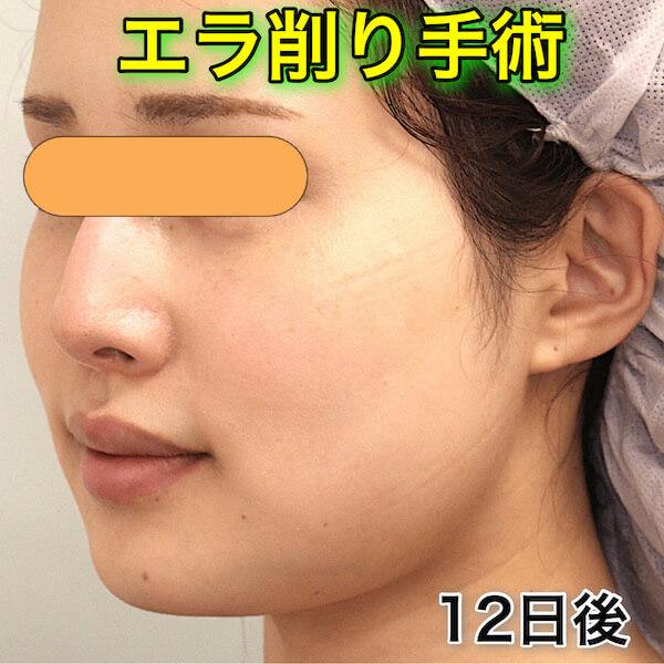 エラ削り手術のビフォーアフター(症例写真)