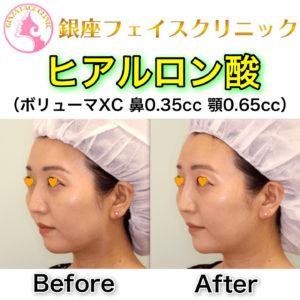 鼻と顎のヒアルロン酸 症例写真