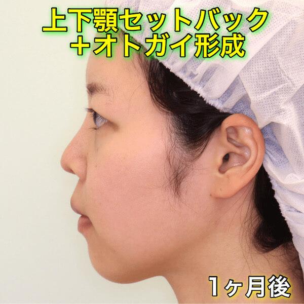 上下顎セットバック +オトガイ形成のビフォーアフター(症例写真)