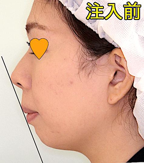 顎ヒアルロン酸のビフォーアフター