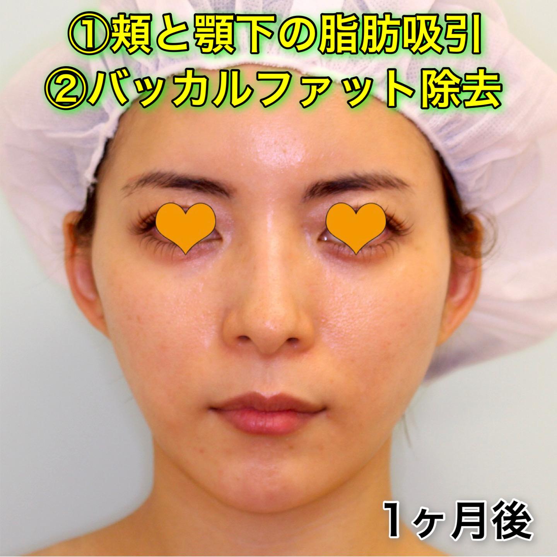 頬と顎下の脂肪吸引|バッカルファット除去|症例写真(ビフォーアフター)