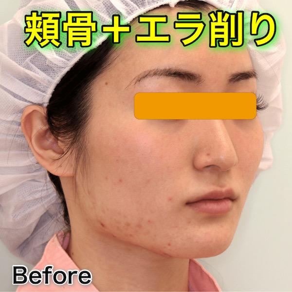 頬骨+エラ削りの症例写真(ビフォーアフター)