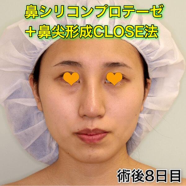 鼻プロテーゼ+鼻尖形成CLOSE法