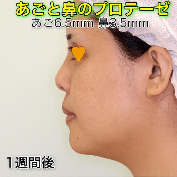 鼻プロテーゼ+顎プロテーゼのビフォーアフター(症例写真)