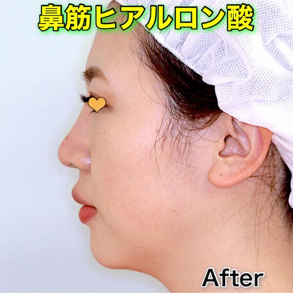鼻筋ヒアルロン酸のビフォーアフター(症例写真)|ボリューマXC